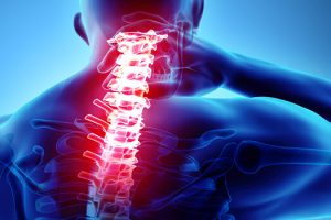 Nonsurgical Treatment Options for Neck Pain Tarpon Springs, FL